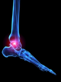Painful Joint Pain in the Feet