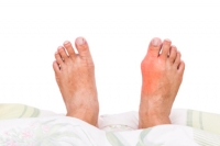 Painful Symptoms of Gout